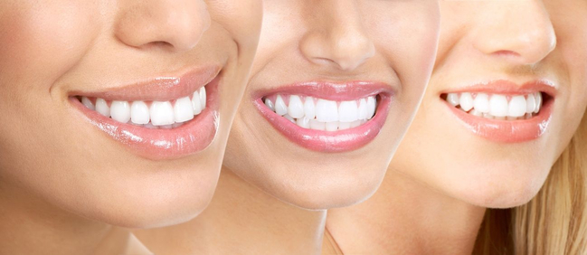 Dental Implants Ahmedabad