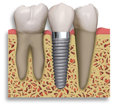 Dental Implants in Ahmedabad - Dr Robin Patel